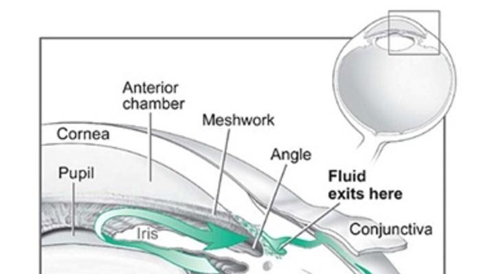Que exámenes son necesarios para diagnosticar Glaucoma?