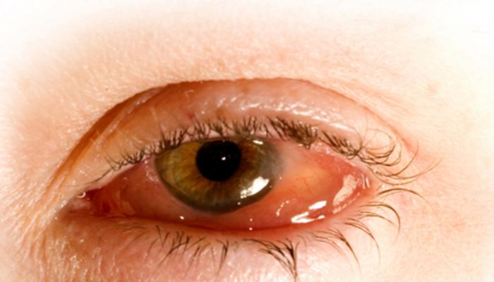 Enfermedad ocular  por Herpes Simple