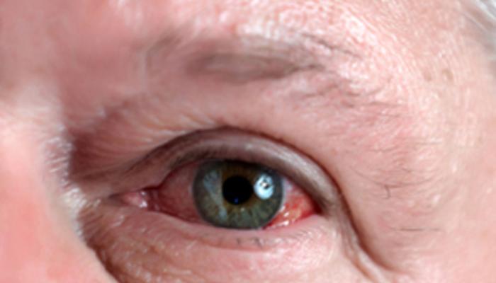 Hemorragia subconjuntival - Derrames en el ojo