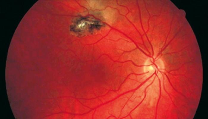 La Toxoplasmosis en  los ojos