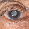 Diabetes y glaucoma