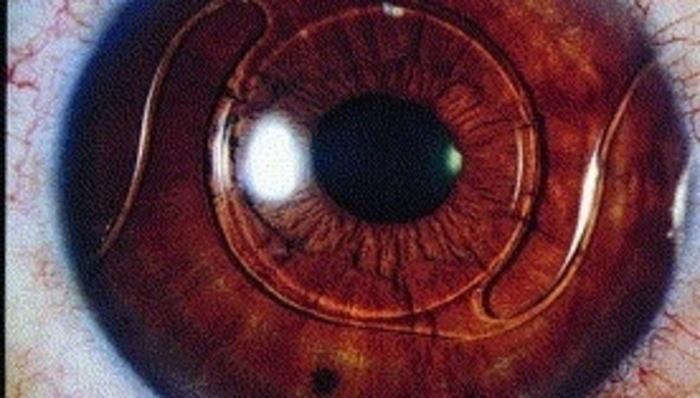 4f7a01758e Para poder hablar de los tipos de lentes intraoculares primero debemos  establecer qué es un lente intraocular y para ...