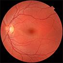retina_vitreo