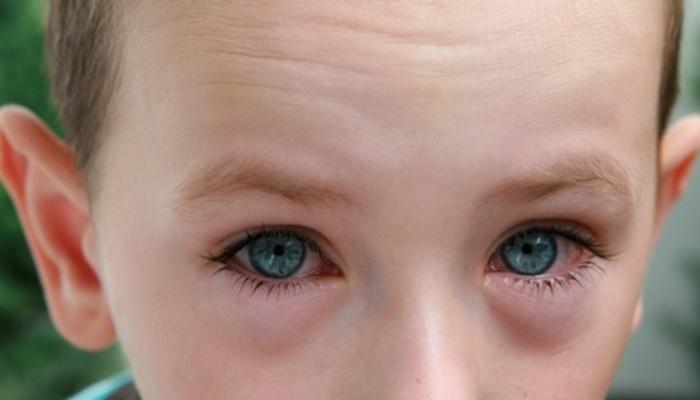 Conjuntivitis Alérgica Aguda y Crónica