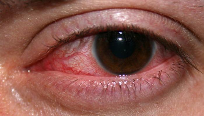 Ojo Rojo como síntoma de enfermedad ocular